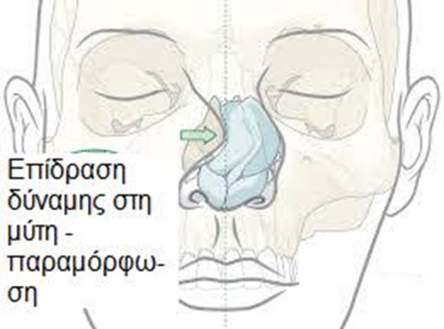 Η άσκηση δύναμης (τραυματισμοί) στη μύτη μπορεί να οδηγήσουν σε παραμόρφωση τόσο του οστέινου όσο και του χόνδρινου σκελετού με αποτέλεσμα δυσμορφία και δυσλειτουργία της μύτης.