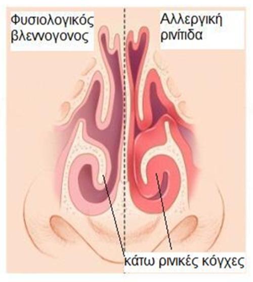Η αλλεργική ρινίτιδα προκαλεί οίδημα του ρινικού βλεννογόνου και αύξηση του όγκου των κάτω ρινικών κογχών, οδηγώντας σε δυσχέρεια της ρινικής αναπνοής