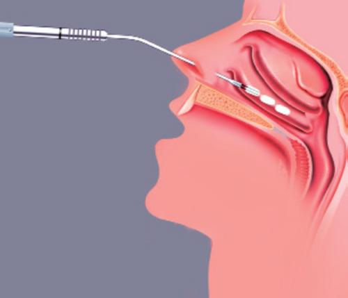 Χειρουργική εφαρμογή των ραδιοσυχνοτήτων στην υπερτροφία των κάτω ρινικών κογχών, με σκοπό την συρρίκνωσή τους